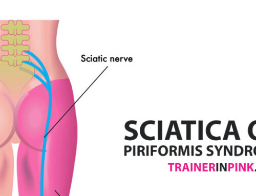 Sciatica OR Piriformis Syndrome